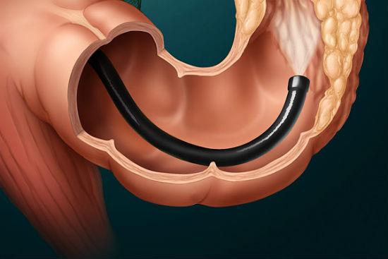 Фиброколоноскопия